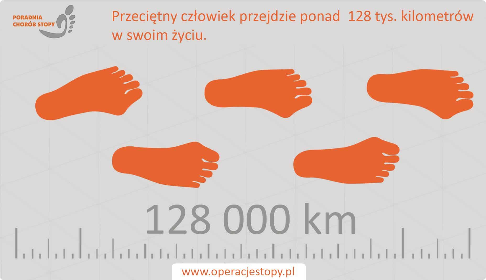 Operacjestopy.pl - Stopa człowieka