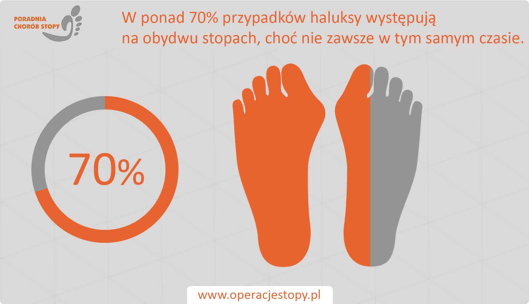 Operacjestopy.pl Haluksy - obydwie stopy