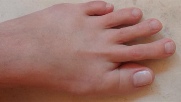Palec młotkowaty - Nadmierna długość palca II, III