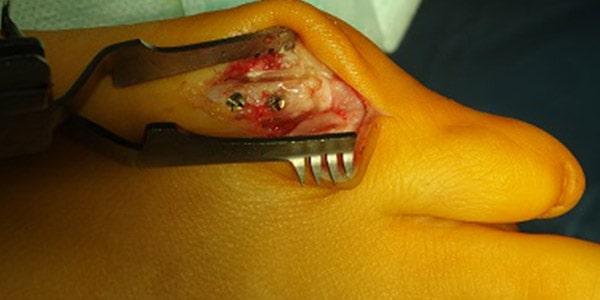 Operacja osteotomii V kości śródstopia