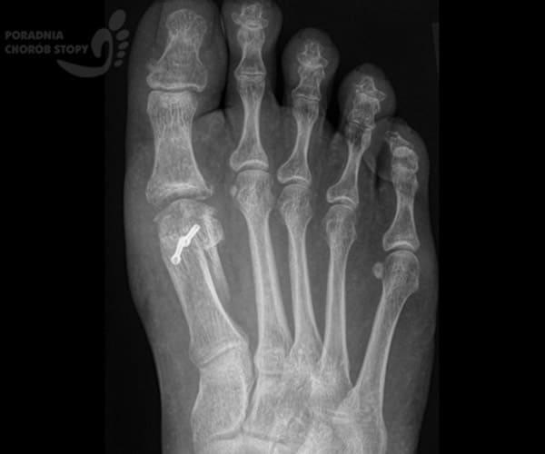 Osteotomia Weil Ikości śródstopia RTG AP
