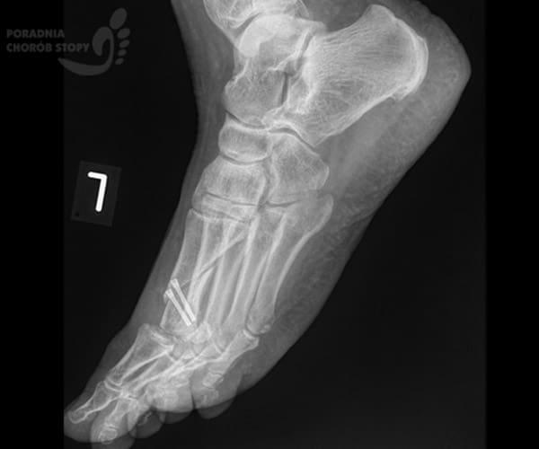 Osteotomia Weil Ikości śródstopia RTG boczne